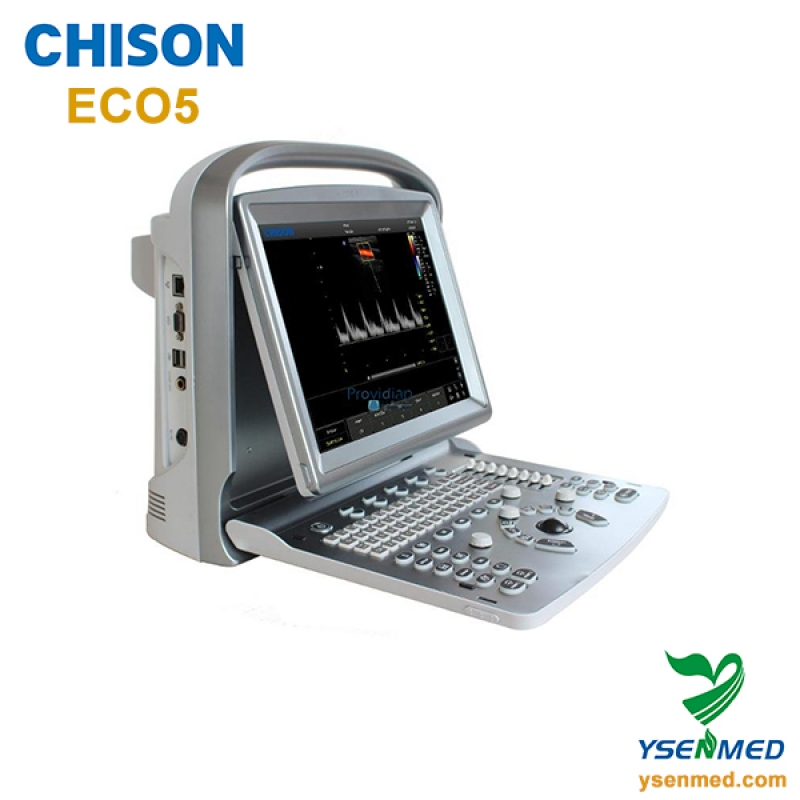 Hot Sale B/W Chison Ultrasound Machine Chison ECO5