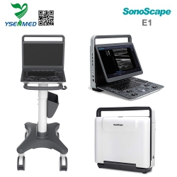 Good Price Portable B/W Ultrasound Machine Sonoscape E1