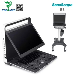 Portable Color Doppler Ultrasound Machine For Sale Sonoscape E3