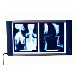 Medical Hospital Luxury X-ray Film Viewer YSX1705