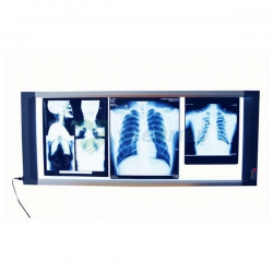 Medical LED X-ray Film Viewer YSX1706