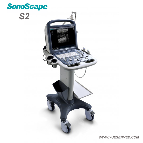 SonoScape S2V Price - SonoScape Veterinary Portable Color Doppler Ultrasound S2V Price