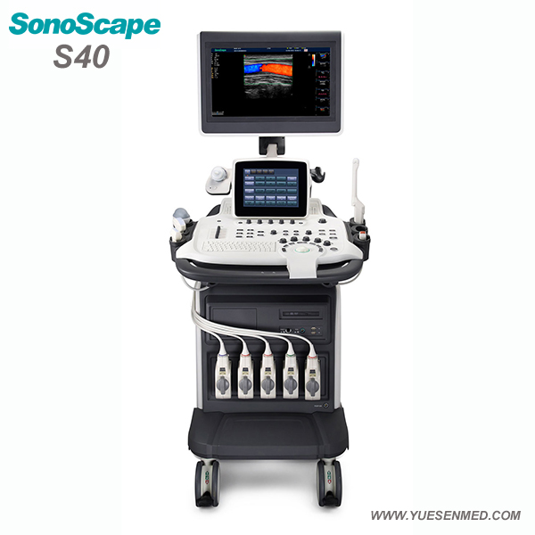 SonoScape S40 Price - Sonoscape Color Ultrasound System S40 For Sale