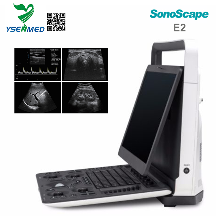 Sonoscape E2 Portable Color Doppler Ultrasound Machine