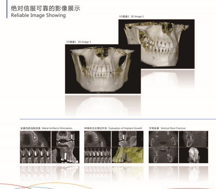 3D Image CBCT Panorama Dental X-Ray Machine YSX1005E