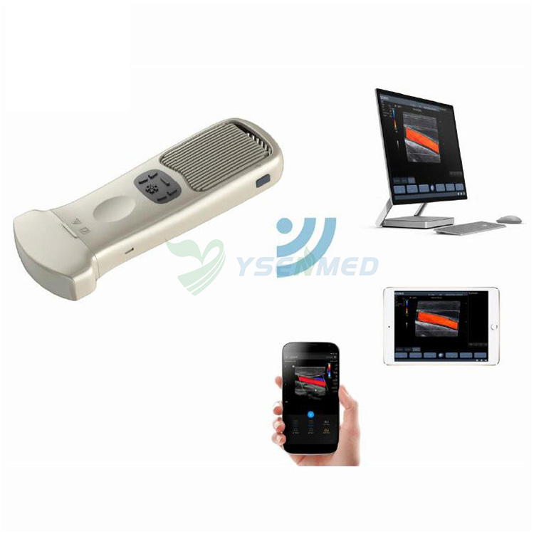wireless ultrasound scanner