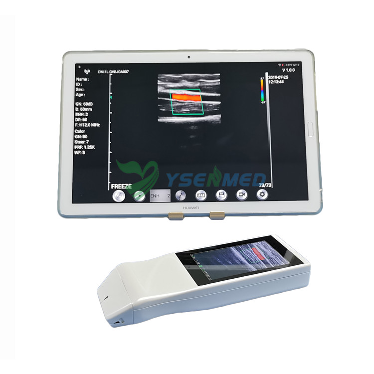 Palmtop Wireless Color Doppler Ultrasound System